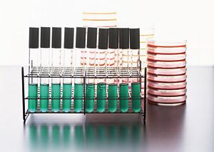 Rivista pasta > Pastaria 19 >Le regole per i controlli microbiologici dei prodotti alimentari deteriorabili